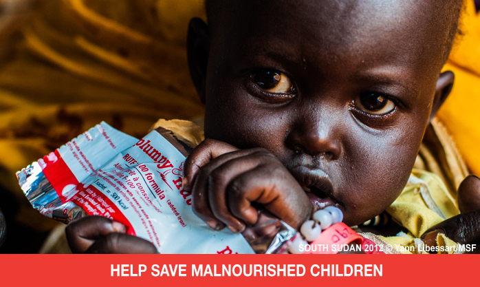 Help Doctors Without Borders Save Malnourished Children